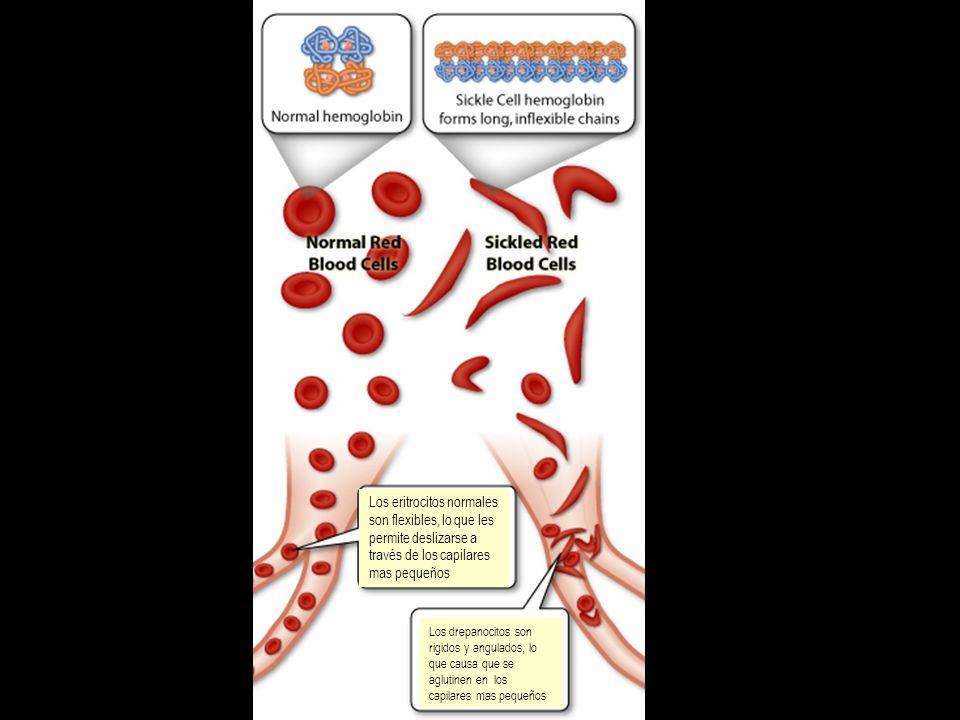 Los eritrocitos normales son flexibles, lo que les permite deslizarse a través de los capilares mas pequeños