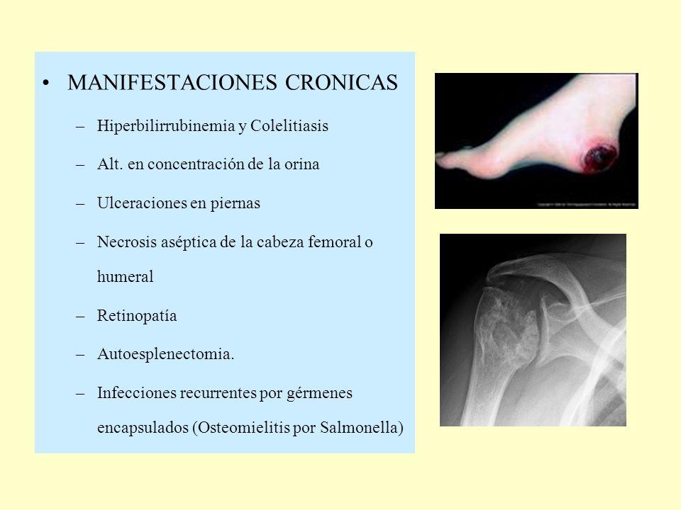 MANIFESTACIONES CRONICAS
