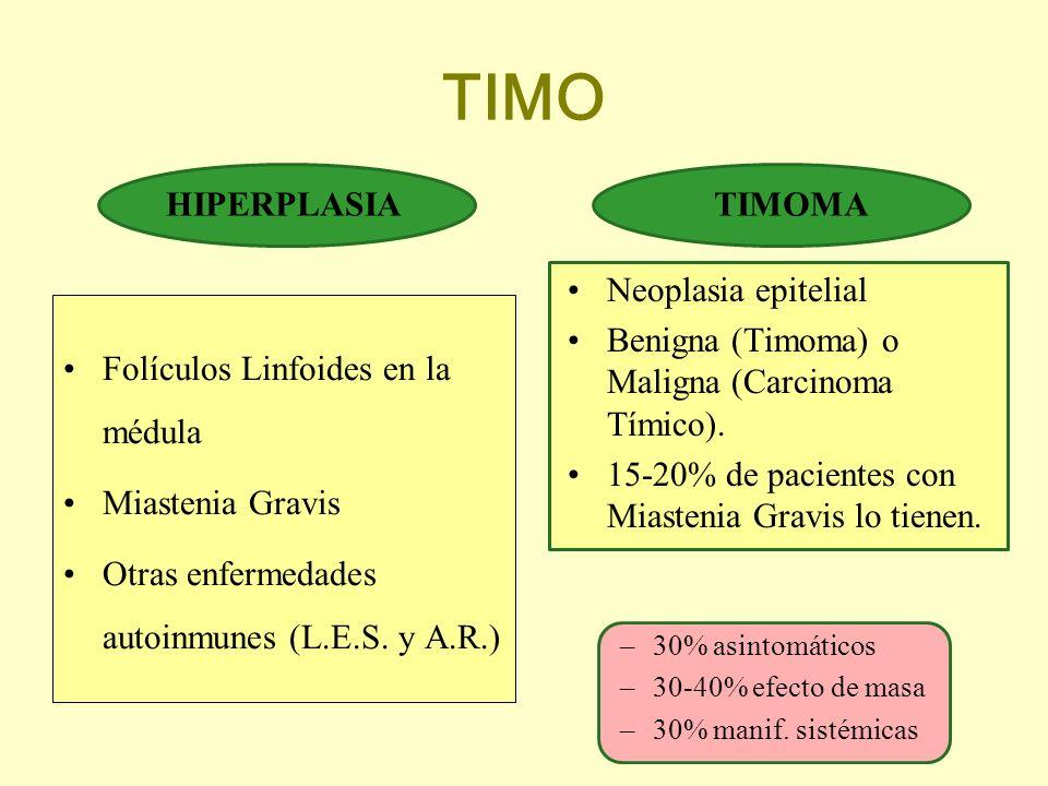 TIMO HIPERPLASIA TIMOMA Neoplasia epitelial