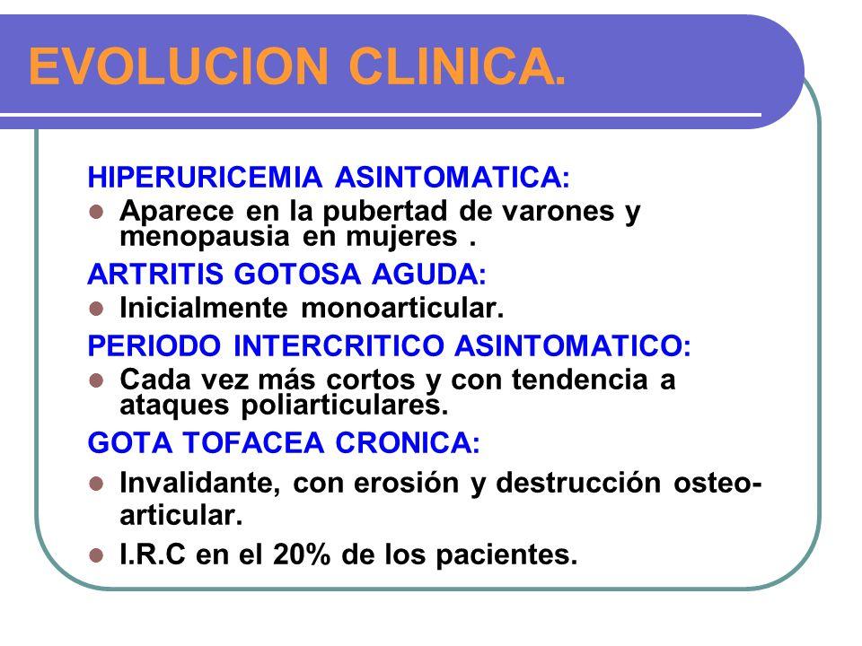 EVOLUCION CLINICA. HIPERURICEMIA ASINTOMATICA: