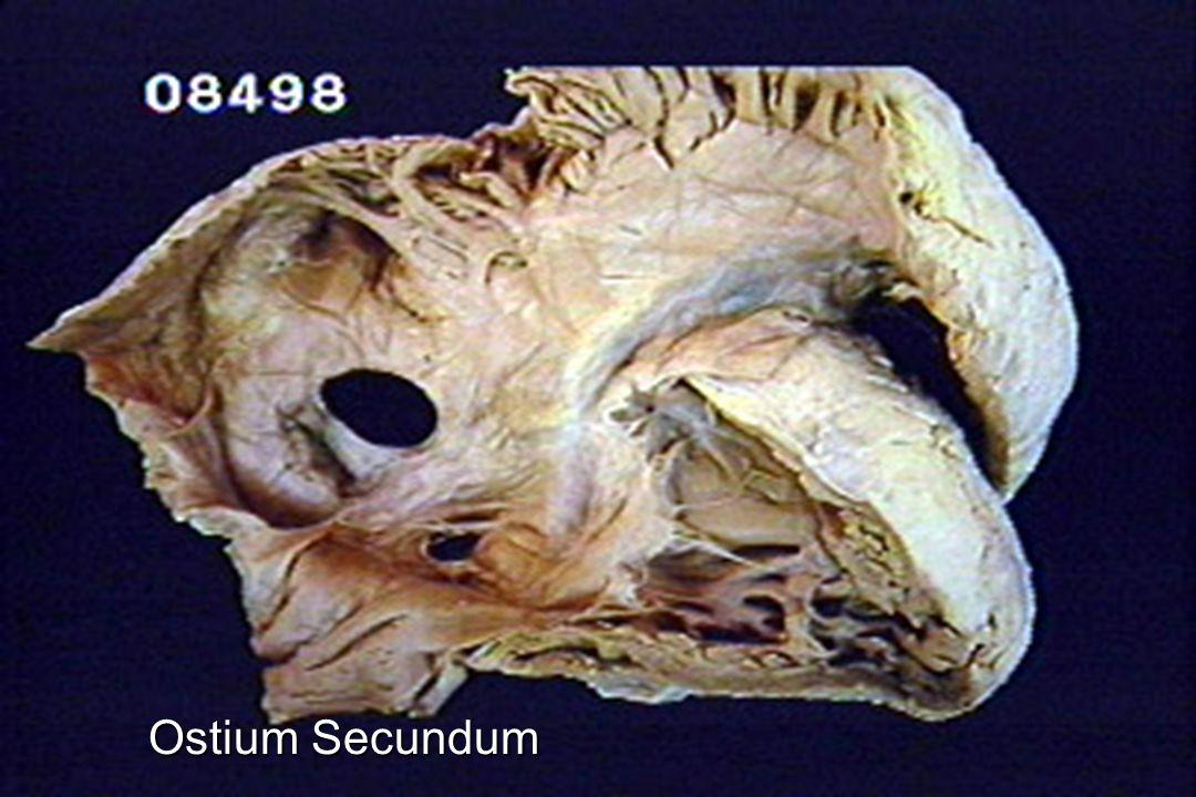 Ostium Secundum