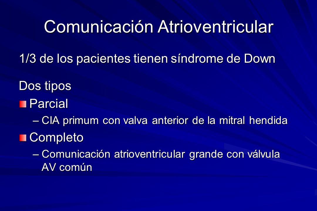 Comunicación Atrioventricular