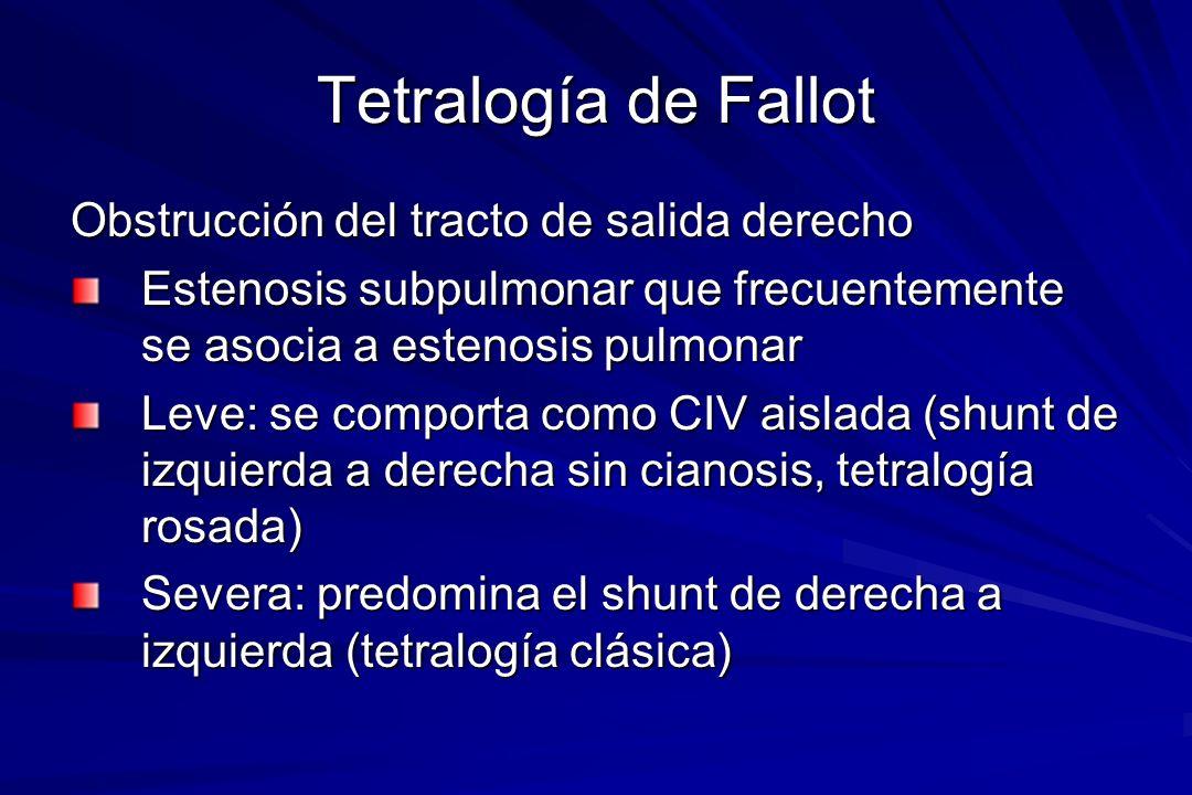 Tetralogía de Fallot Obstrucción del tracto de salida derecho
