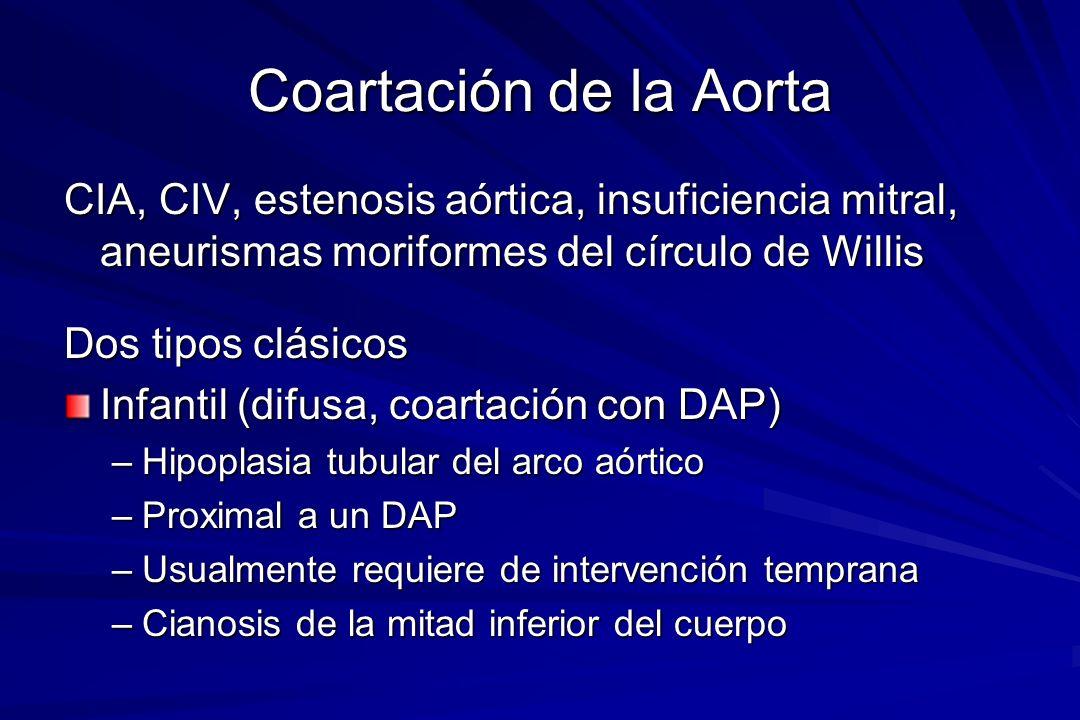 Coartación de la Aorta CIA, CIV, estenosis aórtica, insuficiencia mitral, aneurismas moriformes del círculo de Willis.