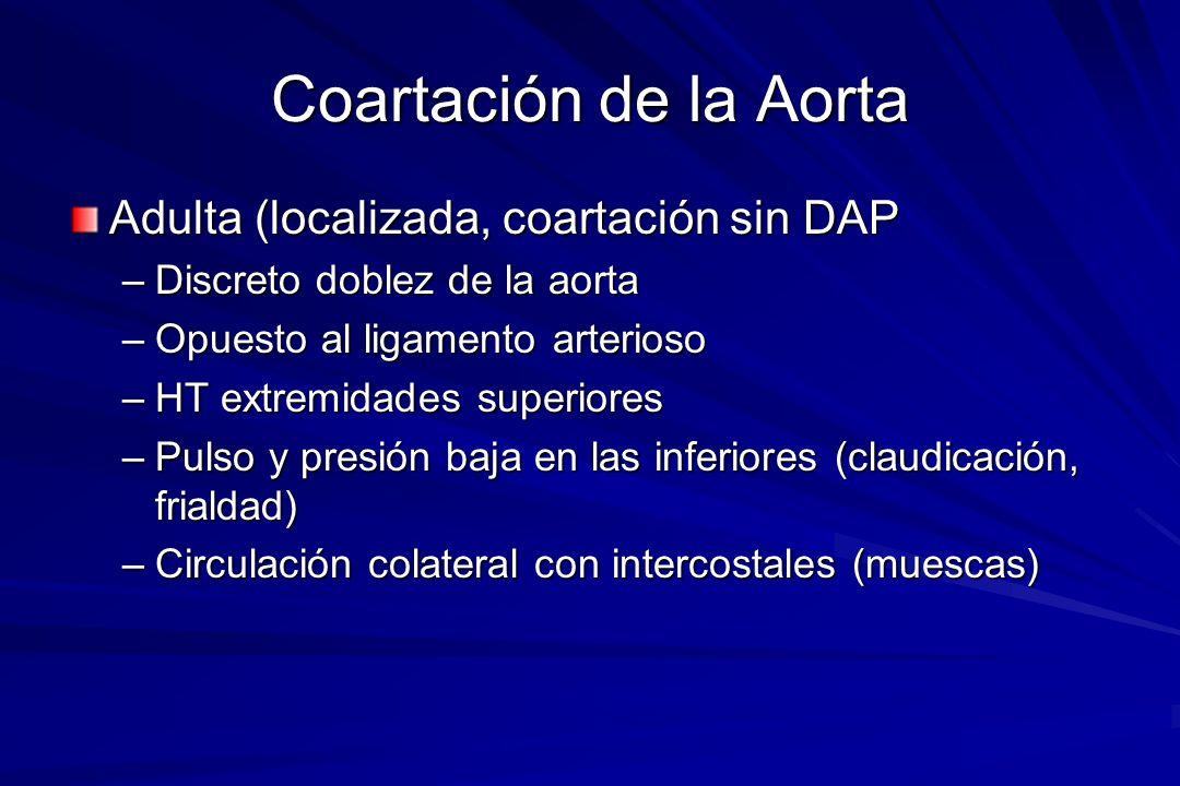 Coartación de la Aorta Adulta (localizada, coartación sin DAP
