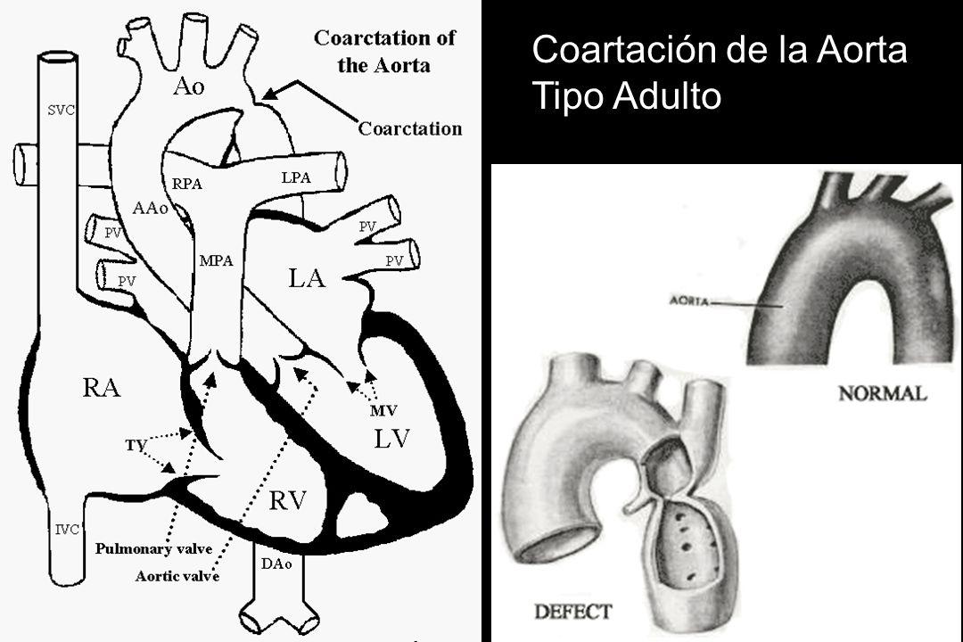 Coartación de la Aorta Tipo Adulto