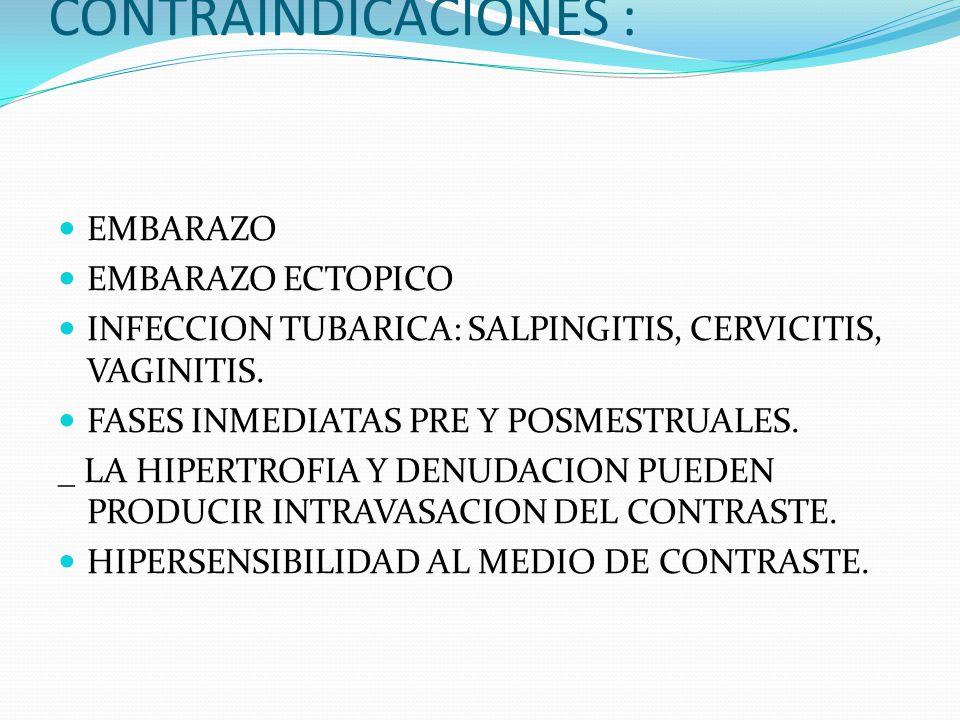 CONTRAINDICACIONES : EMBARAZO EMBARAZO ECTOPICO