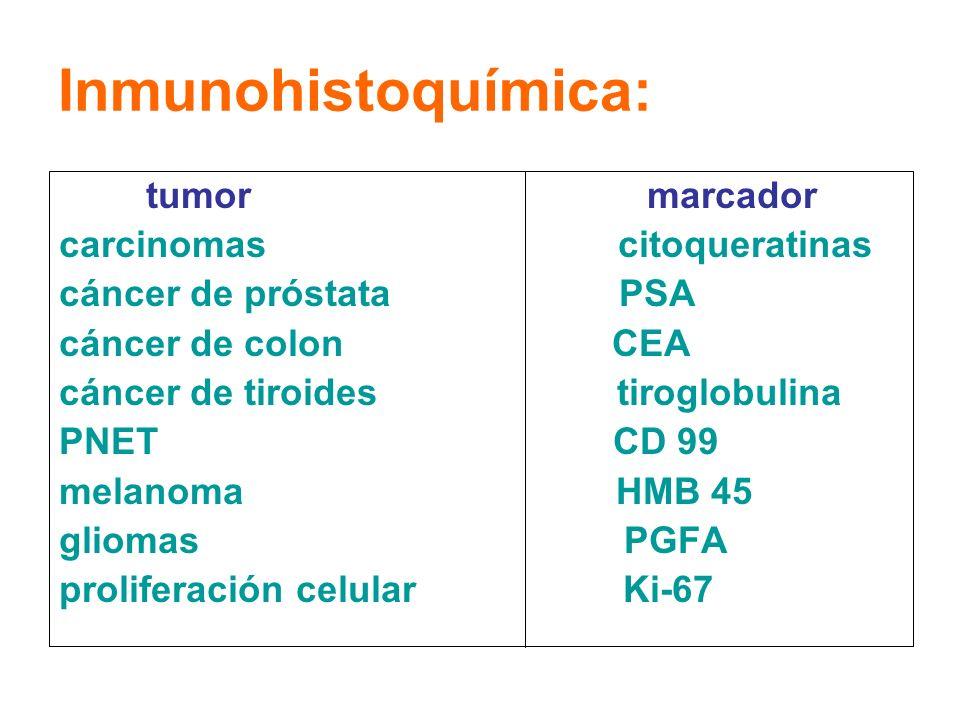 Inmunohistoquímica: tumor marcador carcinomas citoqueratinas