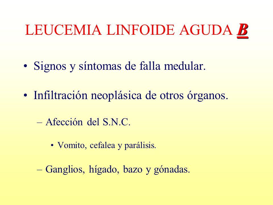 LEUCEMIA LINFOIDE AGUDA B