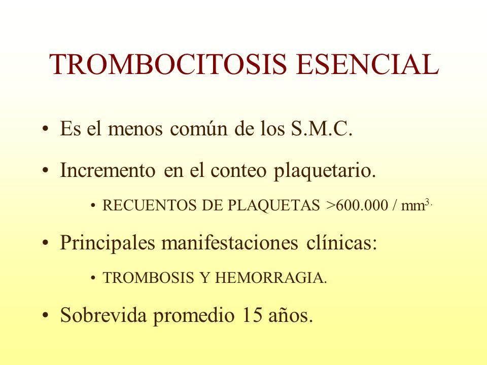 TROMBOCITOSIS ESENCIAL