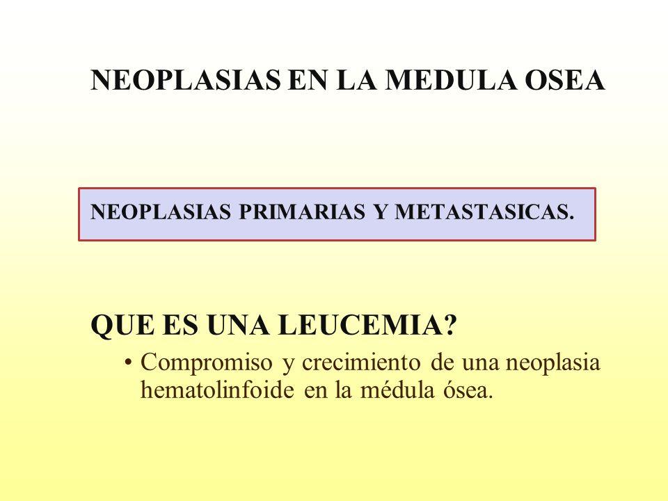NEOPLASIAS EN LA MEDULA OSEA