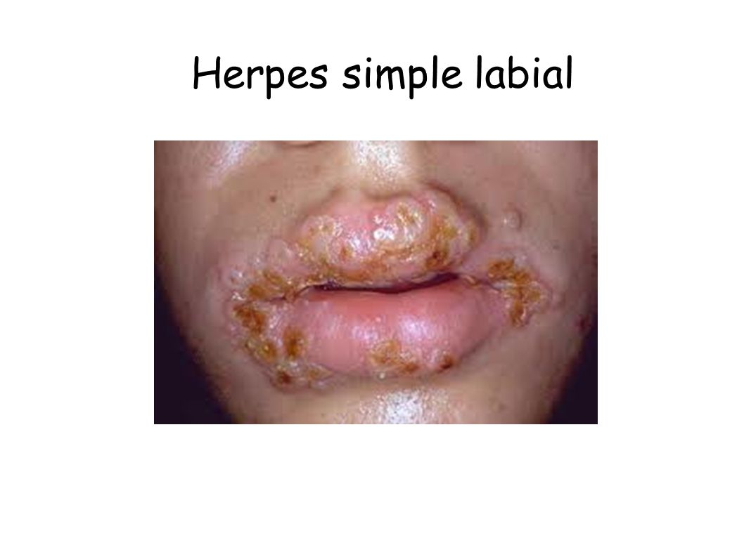 Herpes simple labial