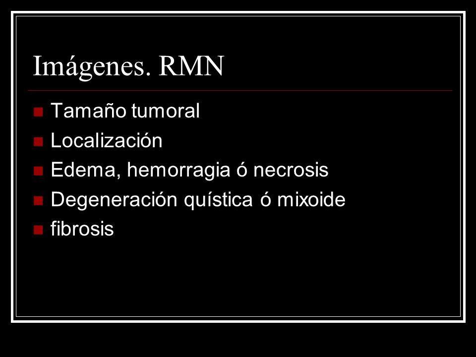 Imágenes. RMN Tamaño tumoral Localización Edema, hemorragia ó necrosis