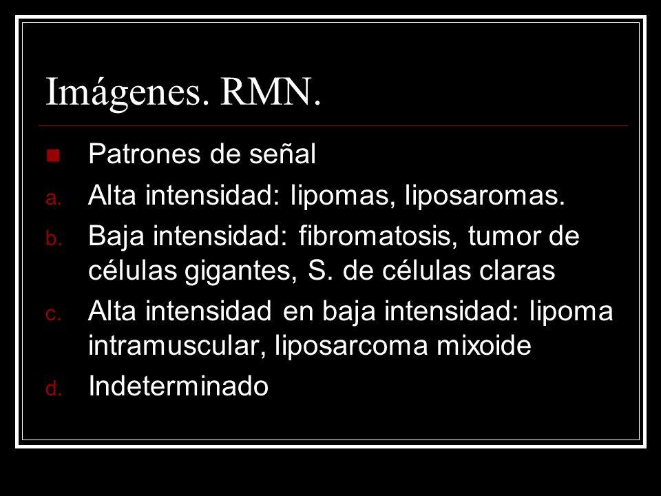 Imágenes. RMN. Patrones de señal