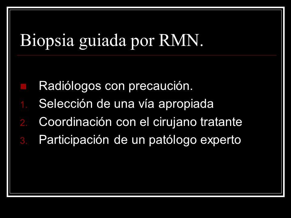 Biopsia guiada por RMN. Radiólogos con precaución.