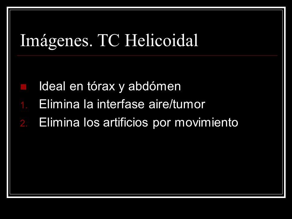 Imágenes. TC Helicoidal
