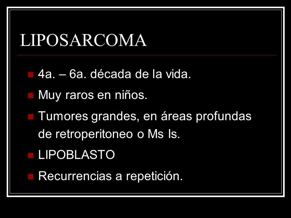LIPOSARCOMA 4a. – 6a. década de la vida. Muy raros en niños.
