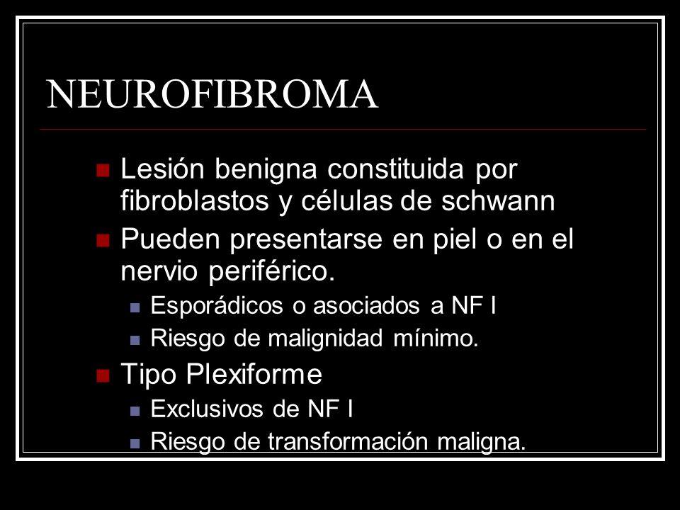 NEUROFIBROMA Lesión benigna constituida por fibroblastos y células de schwann. Pueden presentarse en piel o en el nervio periférico.
