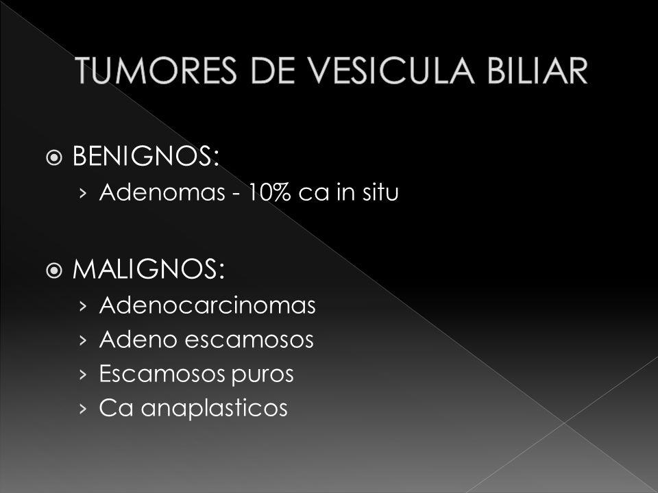 TUMORES DE VESICULA BILIAR