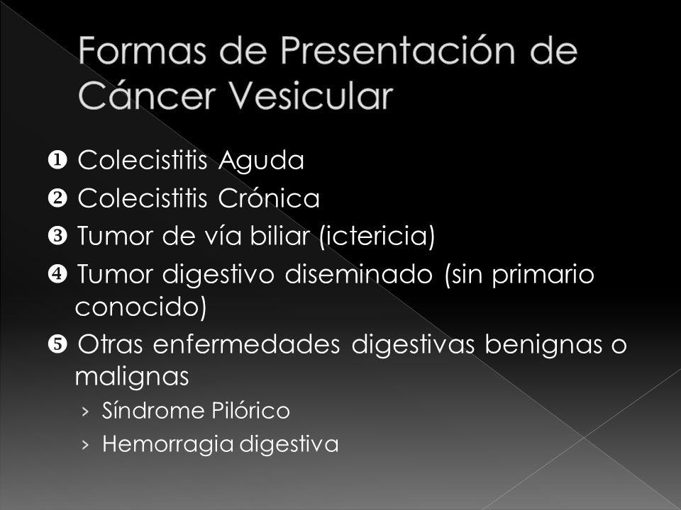 Formas de Presentación de Cáncer Vesicular