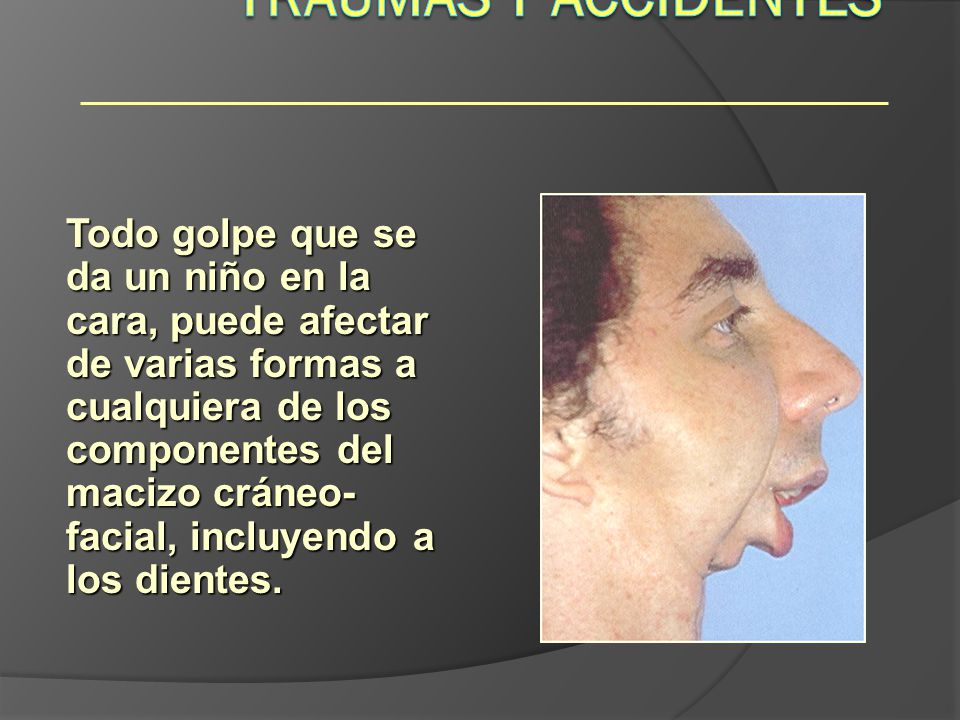 Traumas y Accidentes