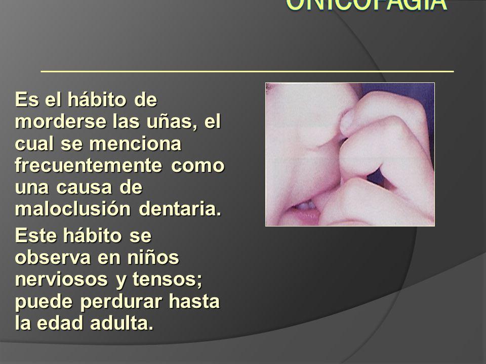 Onicofagia Hábitos. Es el hábito de morderse las uñas, el cual se menciona frecuentemente como una causa de maloclusión dentaria.
