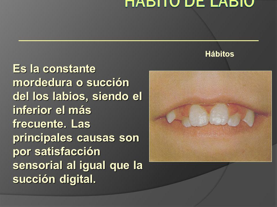 Hábito de Labio Hábitos.