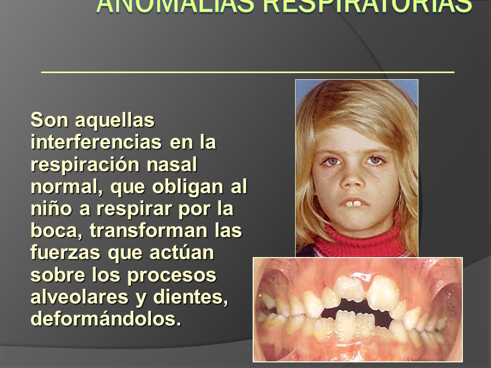 Anomalías Respiratorias