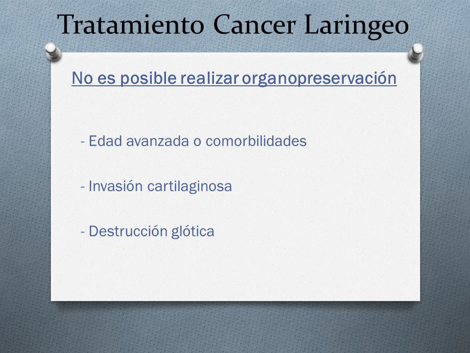 Tratamiento Cancer Laringeo