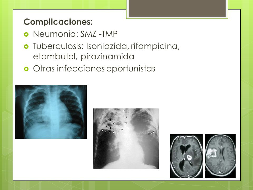 Complicaciones: Neumonía: SMZ -TMP. Tuberculosis: Isoniazida, rifampicina, etambutol, pirazinamida.
