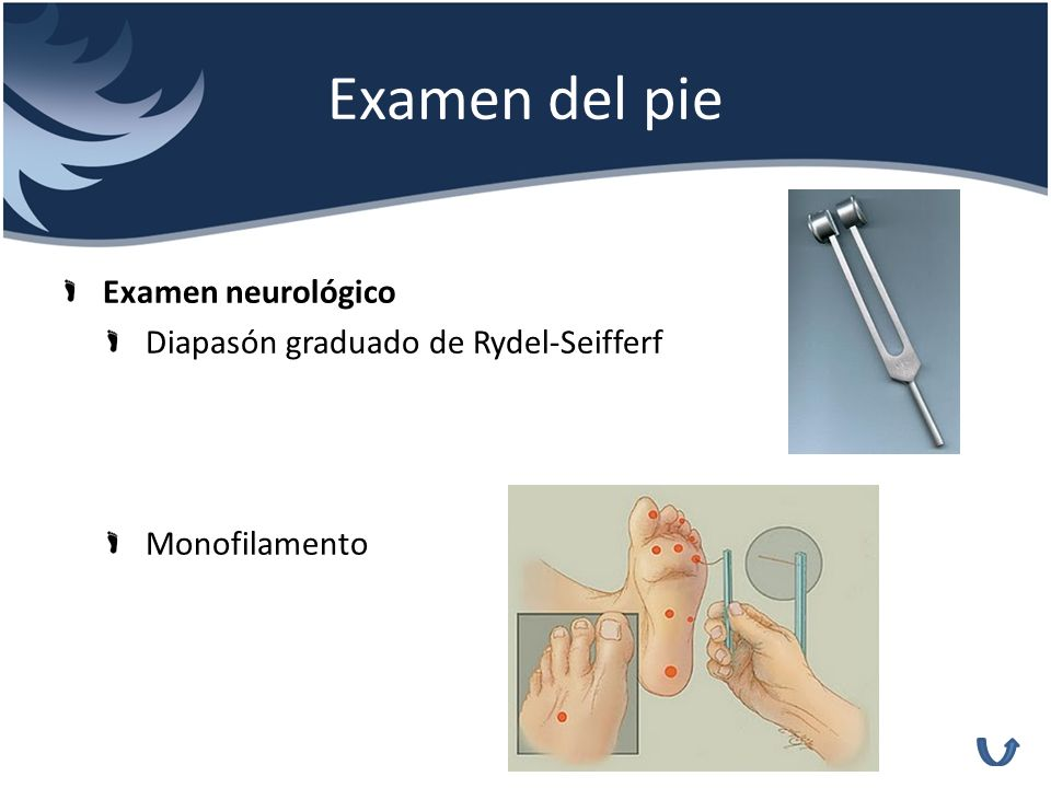 Examen del pie Examen neurológico Diapasón graduado de Rydel-Seifferf