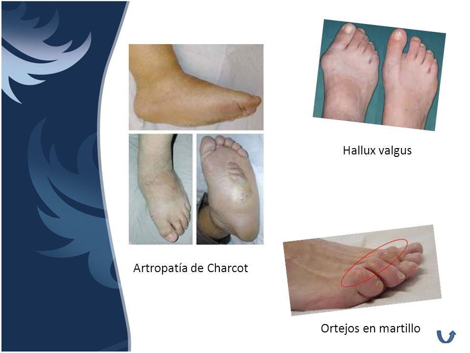 Hallux valgus Artropatía de Charcot Ortejos en martillo
