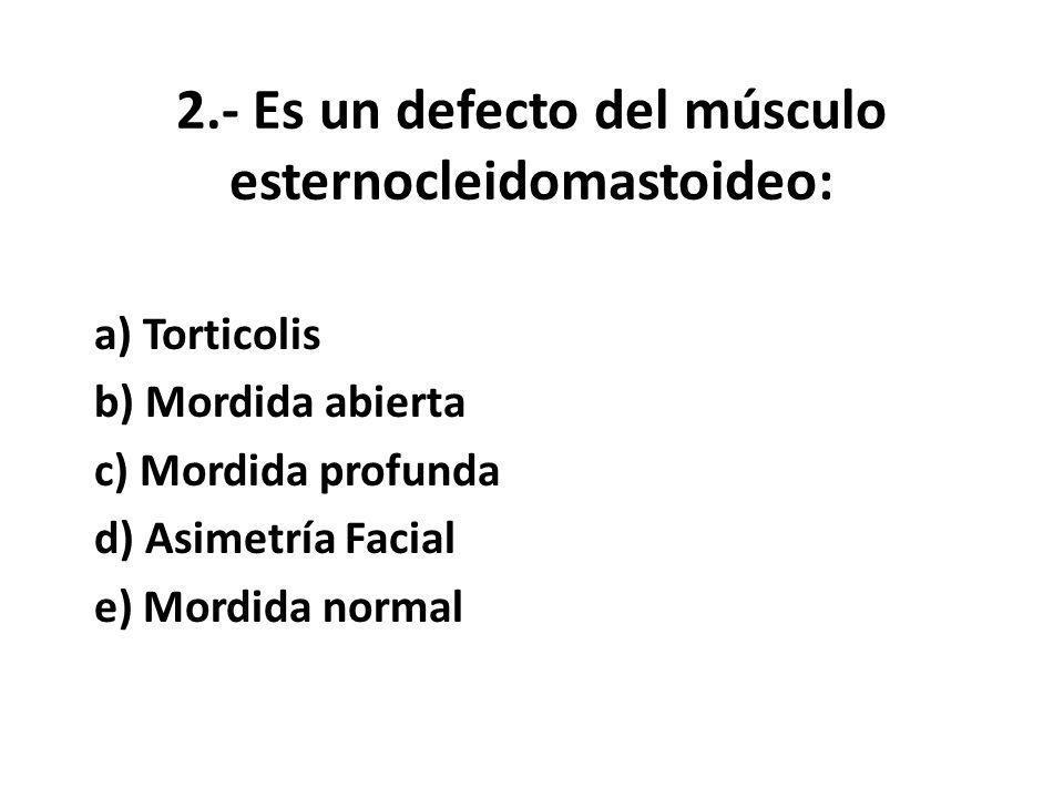 2.- Es un defecto del músculo esternocleidomastoideo: