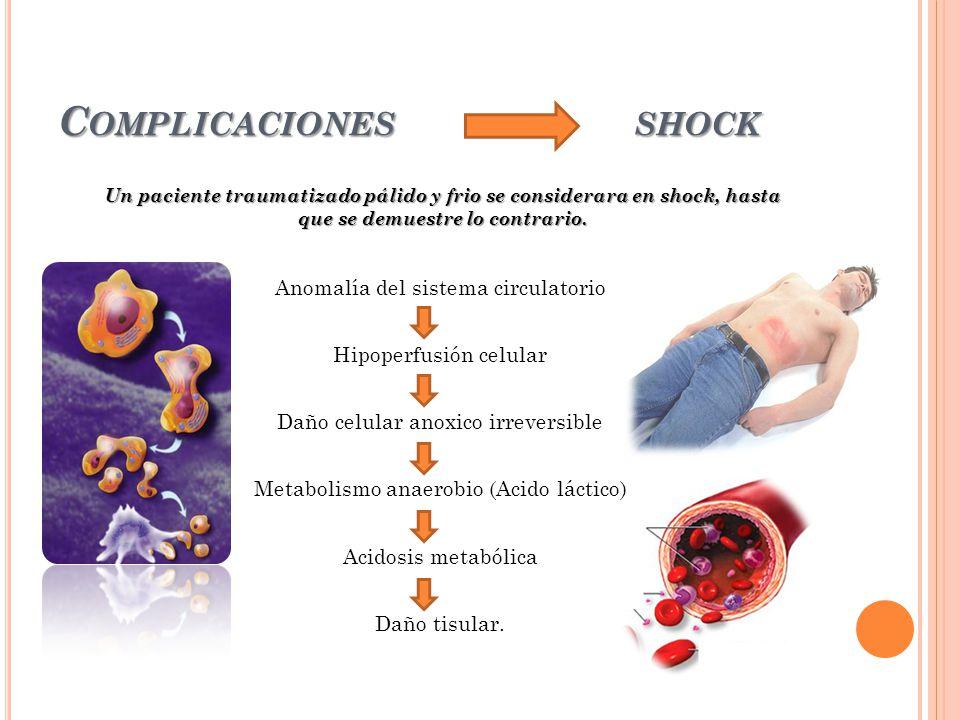 Complicaciones shock