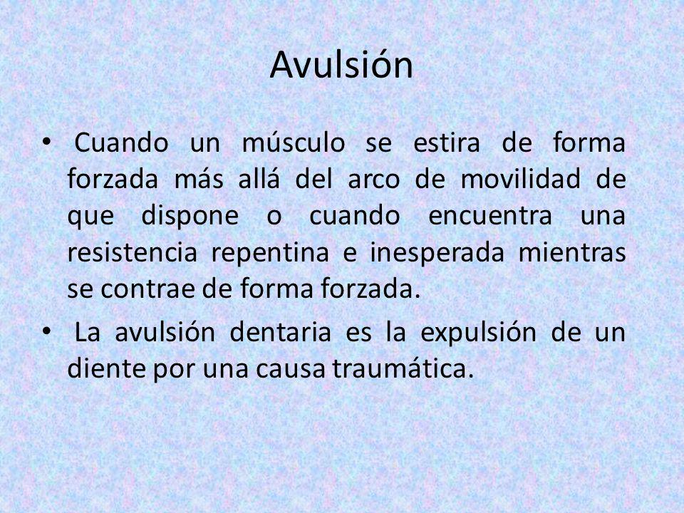 Avulsión
