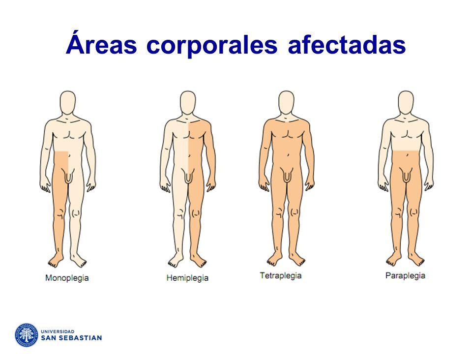 Áreas corporales afectadas