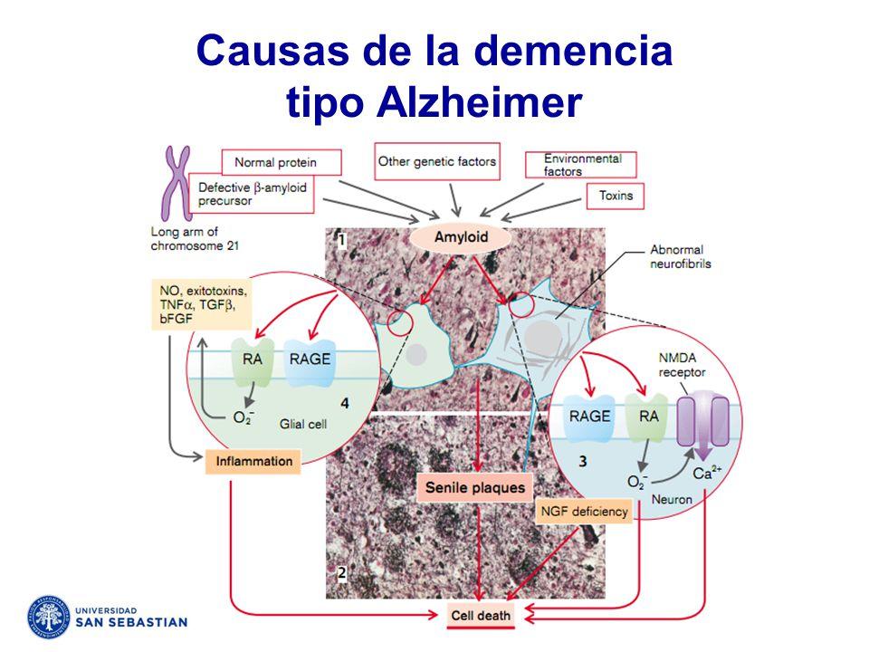 Causas de la demencia tipo Alzheimer