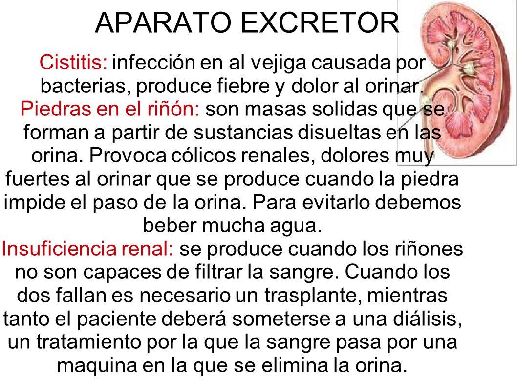 APARATO EXCRETORCistitis: infección en al vejiga causada por bacterias, produce fiebre y dolor al orinar.
