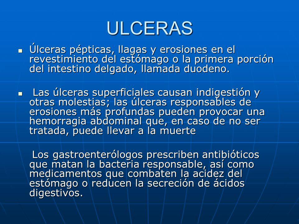 ULCERAS Úlceras pépticas, llagas y erosiones en el revestimiento del estómago o la primera porción del intestino delgado, llamada duodeno.