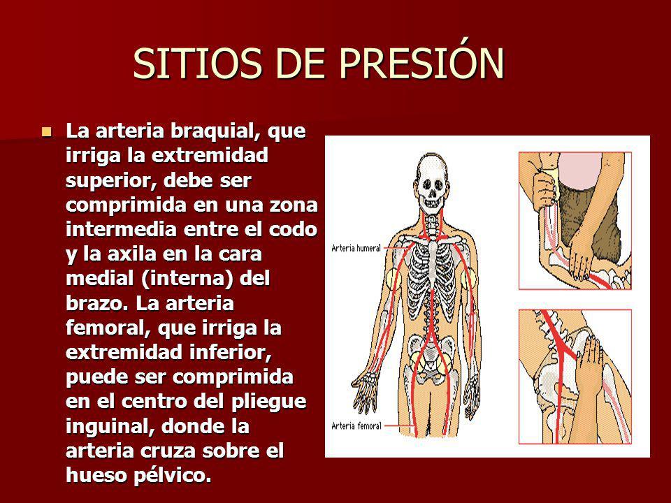 SITIOS DE PRESIÓN