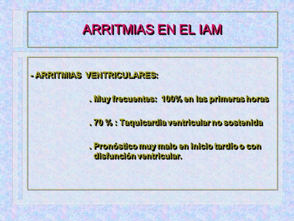 ARRITMIAS EN EL IAM - ARRITMIAS VENTRICULARES: