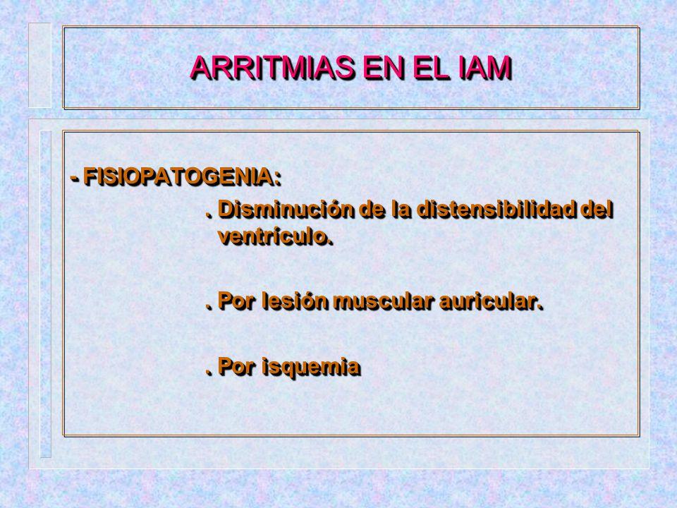 ARRITMIAS EN EL IAM - FISIOPATOGENIA: