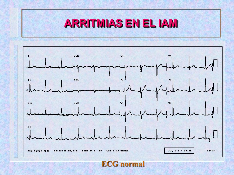 ARRITMIAS EN EL IAM ECG normal