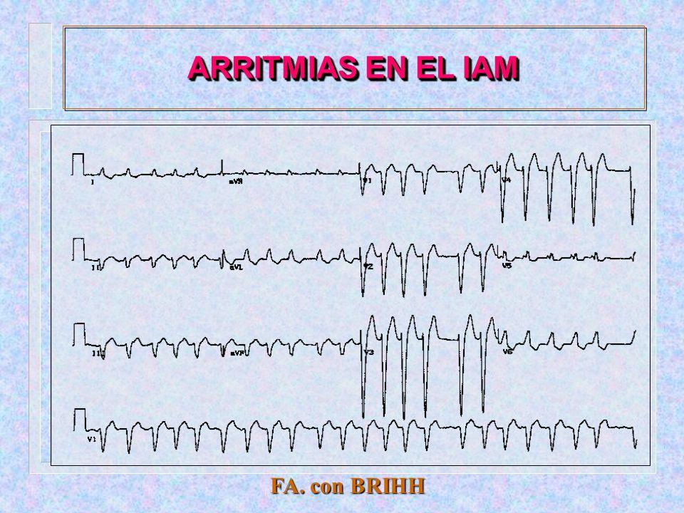 ARRITMIAS EN EL IAM FA. con BRIHH