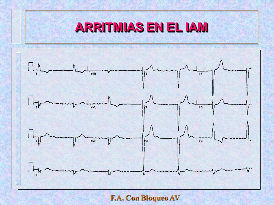 ARRITMIAS EN EL IAM F.A. Con Bloqueo AV