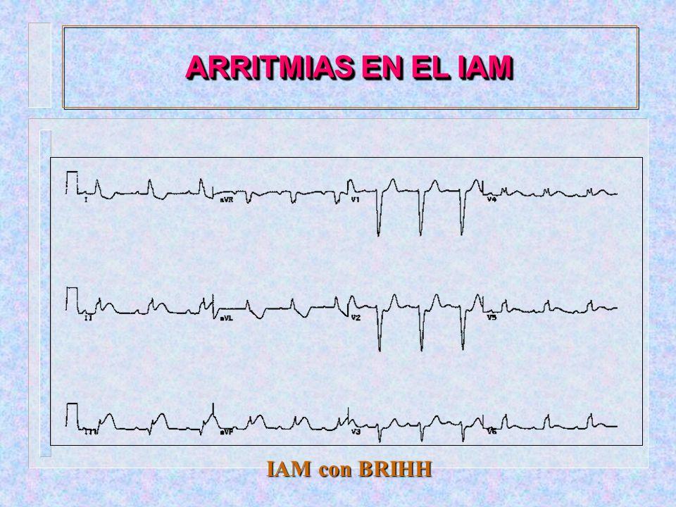 ARRITMIAS EN EL IAM IAM con BRIHH