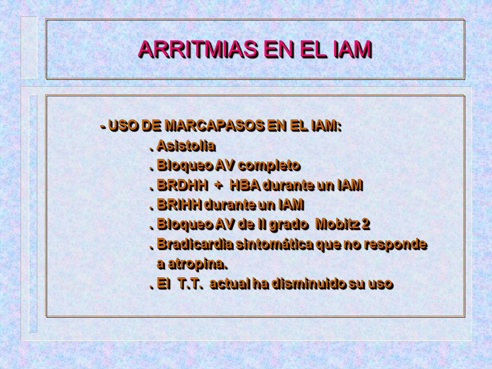 ARRITMIAS EN EL IAM - USO DE MARCAPASOS EN EL IAM: . Asistolia