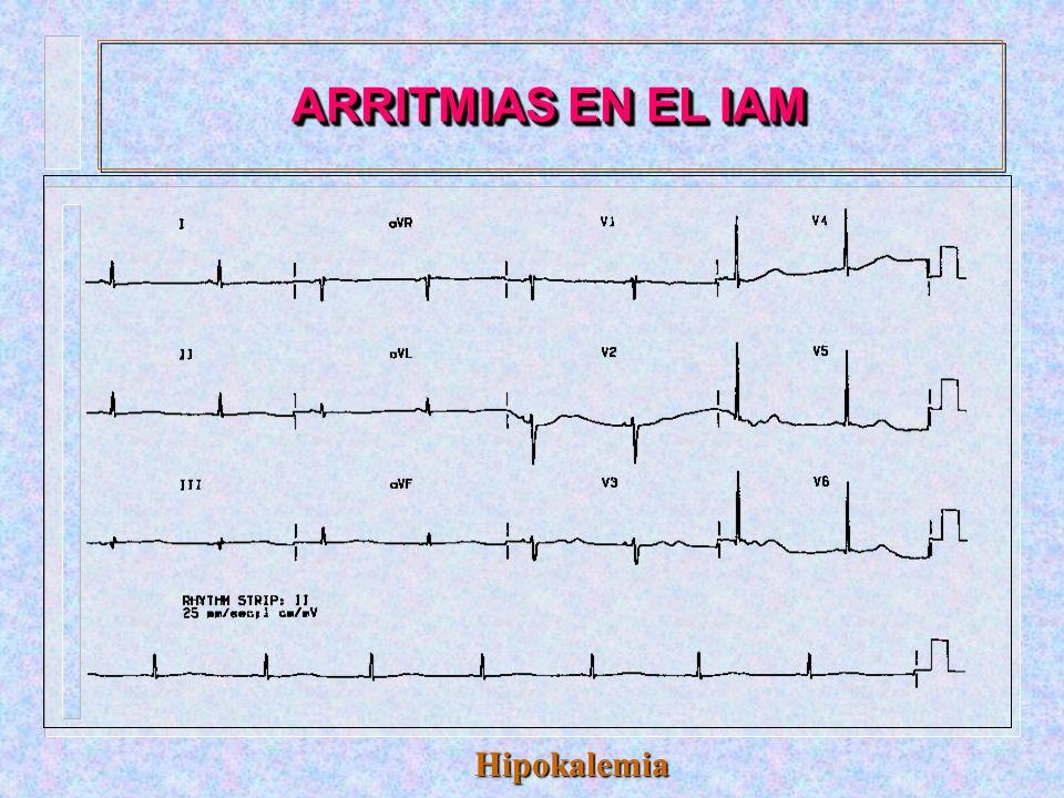 ARRITMIAS EN EL IAM Hipokalemia