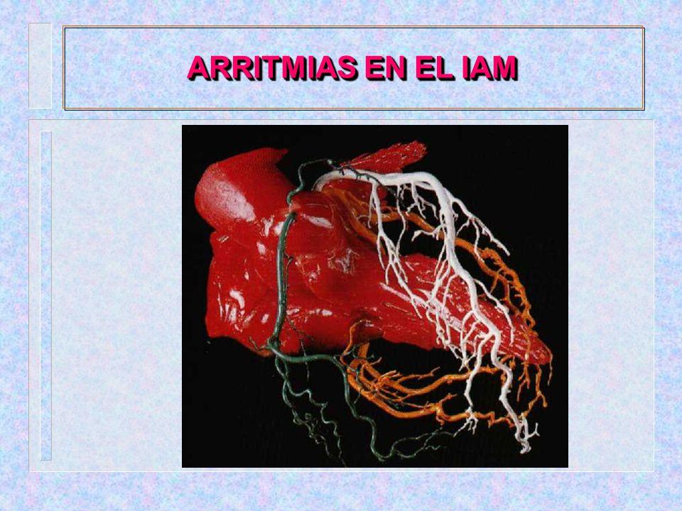 ARRITMIAS EN EL IAM