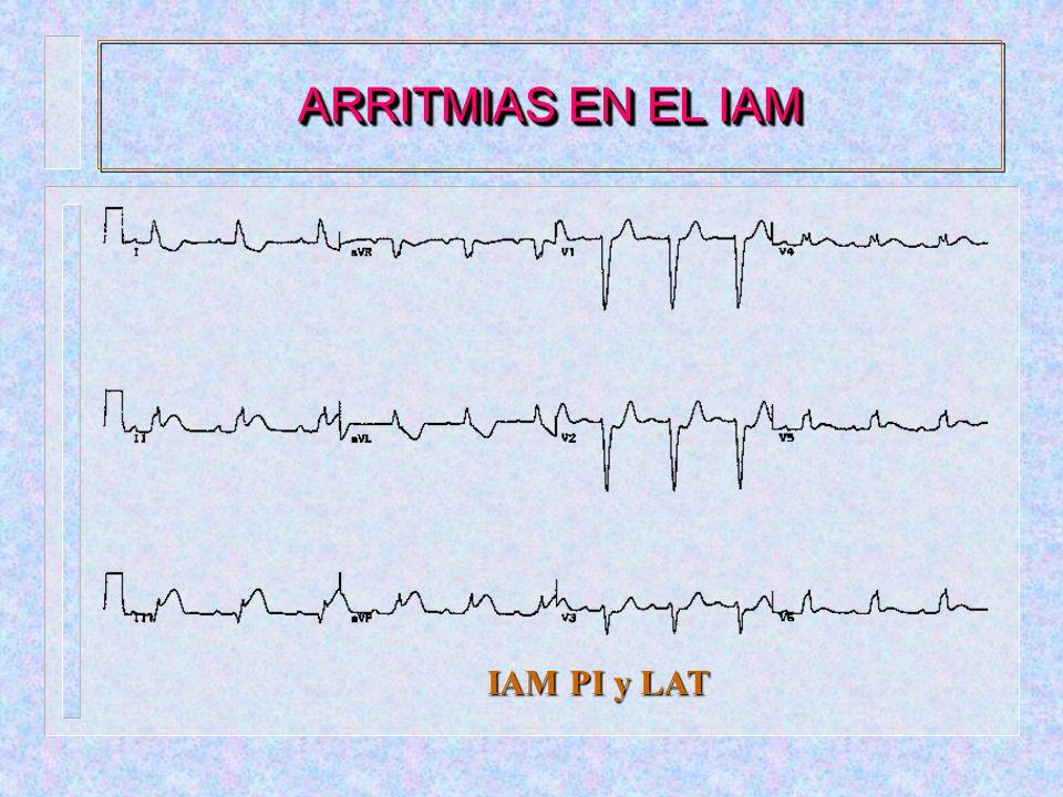 ARRITMIAS EN EL IAM IAM PI y LAT